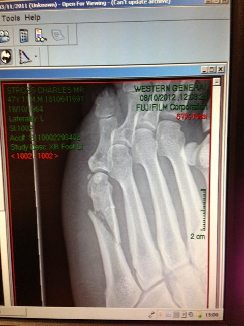 x-ray image of broken metatarsal bone